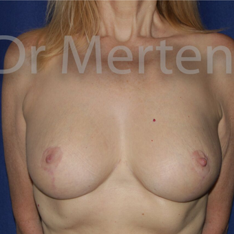 Breast Reduction after 3681213