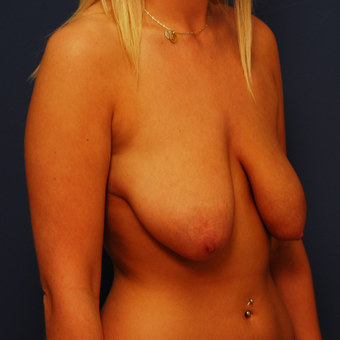 18-24 year old woman treated with Breast Lift before 3619271