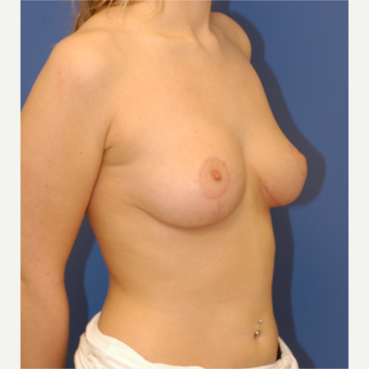 18-24 year old woman treated with Breast Lift after 3619271