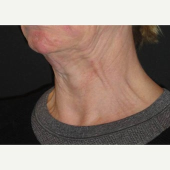 55-64 year old woman treated with Botox before 1842824