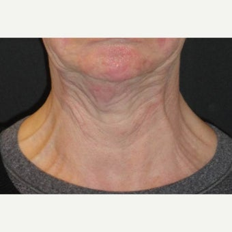 55-64 year old woman treated with Botox 1842824