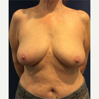 65-74 year old woman treated with Breast Reduction before 1984116