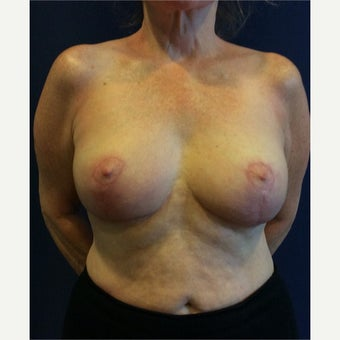 65-74 year old woman treated with Breast Reduction after 1984116