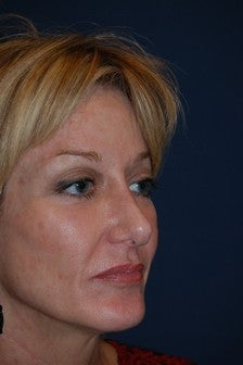 Female with Cheek Implants after 1140303