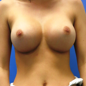 25-34 year old woman treated with Breast Augmentation after 3421976