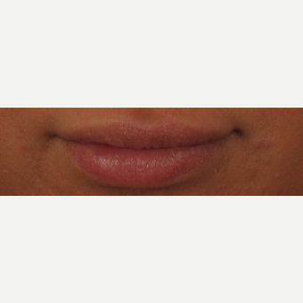 25-34 year old woman treated with Voluma for Lip Augmentation after 3494120