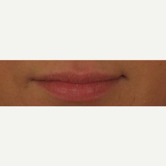 25-34 year old woman treated with Voluma for Lip Augmentation before 3494120