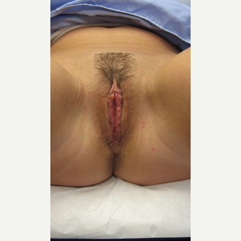 25-34 year old woman treated with Labiaplasty after 3187549