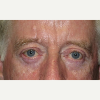 64 year old man treated with Eyelid Surgery after 3054541