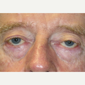 64 year old man treated with Eyelid Surgery before 3054541