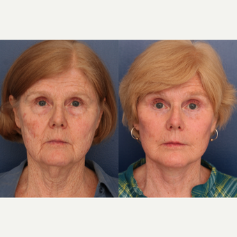 55-64 year old woman treated with Facelift before 3705757