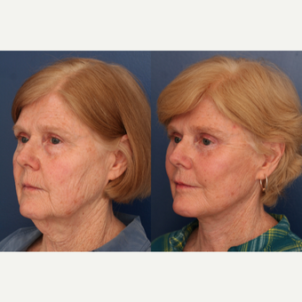 55-64 year old woman treated with Facelift after 3705757