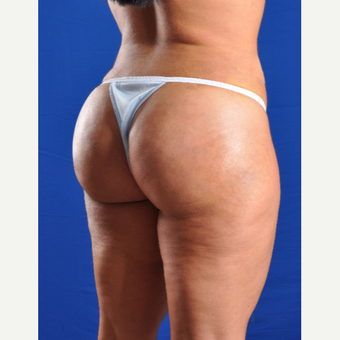 25-34 year old woman treated with Smart Lipo after 3625049