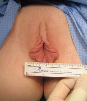 25-34 year old woman treated with Labiaplasty and Clitoral Hood reduction before 1780069