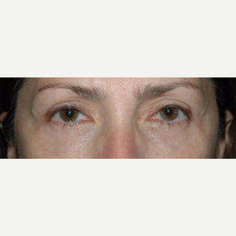 45 year old woman treated with Eyelid Surgery after 3710560