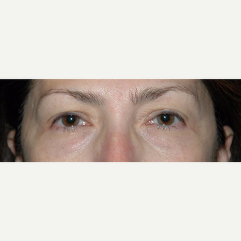 45 year old woman treated with Eyelid Surgery before 3710560