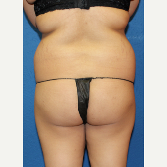 25-34 year old woman treated with Brazilian Butt Lift before 3456726