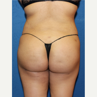 25-34 year old woman treated with Brazilian Butt Lift after 3456726