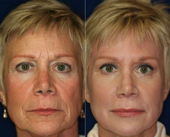 Chemical Peel before 1429272