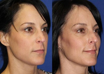 44yo, Filler Injections: 2cc Voluma to cheeks 1283416