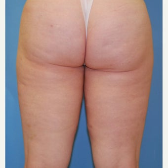 25-34 year old woman treated with Velashape before 1609596