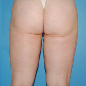 25-34 year old woman treated with Velashape after 1609596