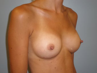 29 Y.O Woman Who Had A Breast Augmentation With Silicone Implants. 1423517