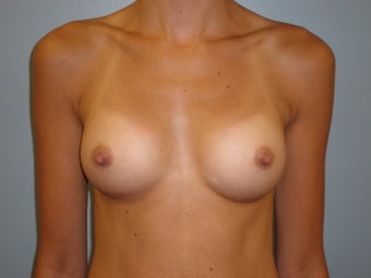 29 Y.O Woman Who Had A Breast Augmentation With Silicone Implants. after 1423517