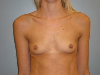 29 Y.O Woman Who Had A Breast Augmentation With Silicone Implants. before 1423517