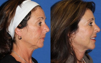 50yo, Facelift, Endoscopic Brow, Upper/Lower Lid Blepharoplasty, Microfat grafting  after 1283352