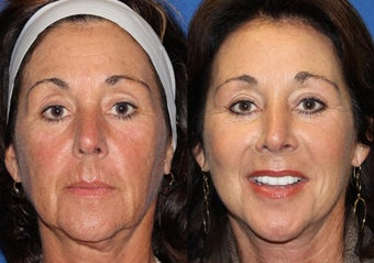 50yo, Facelift, Endoscopic Brow, Upper/Lower Lid Blepharoplasty, Microfat grafting  before 1283352
