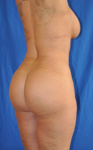 Buttock Augmentation with Fat Transfer (Brazilian Butt Lift) after 370627