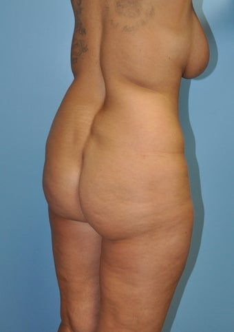 Buttock Augmentation with Fat Transfer (Brazilian Butt Lift) before 370627