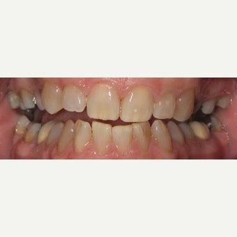 55-64 year old woman treated with Invisalign before 2593237
