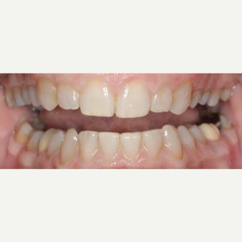 55-64 year old woman treated with Invisalign after 2593237