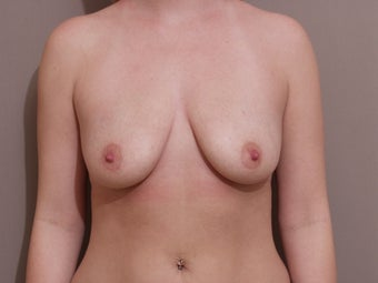 "25 year old female, 5'4"", 140lbs., desires cosmetic improvement of breasts before 1254190"