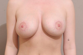 "25 year old female, 5'4"", 140lbs., desires cosmetic improvement of breasts after 1254190"