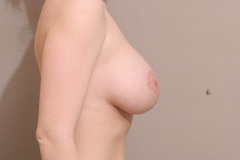 "25 year old female, 5'4"", 140lbs., desires cosmetic improvement of breasts 1254190"