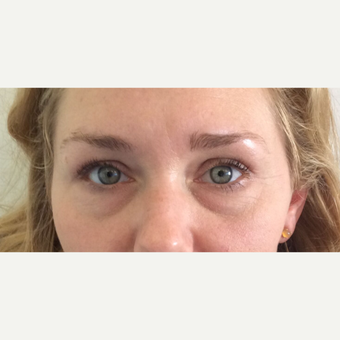 Juvederm Under Eye Filler (Tear Trough) Treatment before 3042518