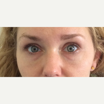 Juvederm Under Eye Filler (Tear Trough) Treatment after 3042518