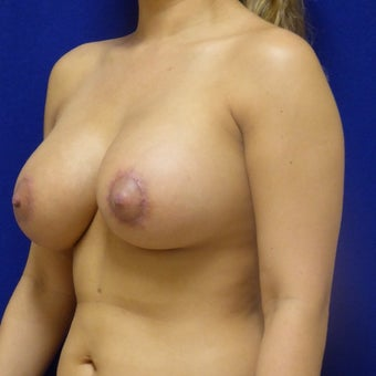 26 y.o. female – Breast Augmentation – 600cc High Profile Silicone Implants after 2420761