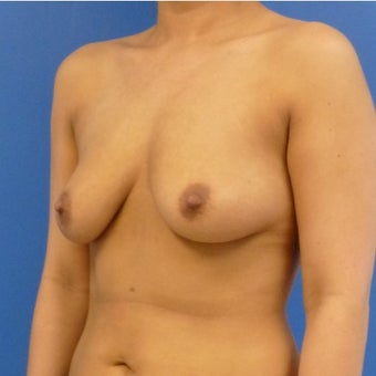 26 y.o. female – Breast Augmentation – 600cc High Profile Silicone Implants before 2420761
