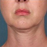 Kybella before 1853631