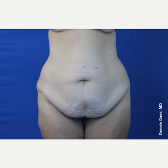 25-34 year old woman treated with Tummy Tuck before 3679735