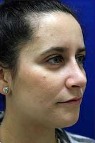 Rhinoplasty after 3202666