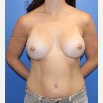 25-34 year old woman treated with Breast Implants after 3123318