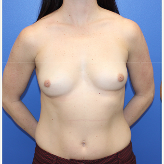 25-34 year old woman treated with Breast Implants before 3123318