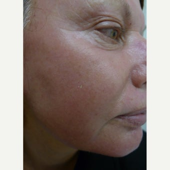 Medium depth laser peel after 2257767