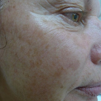 Medium depth laser peel before 2257767