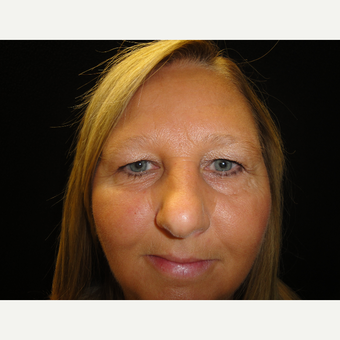 35-44 year old woman treated with Forehead Lift before 3823253